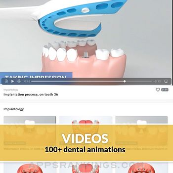 Dental videos by DentiCalc Ipad Images
